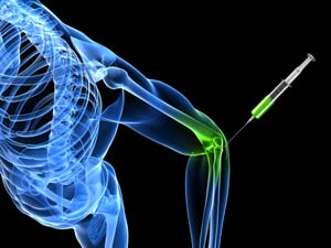 hyaluronic joint injection