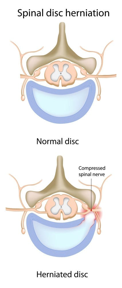 photo of a herniated disc