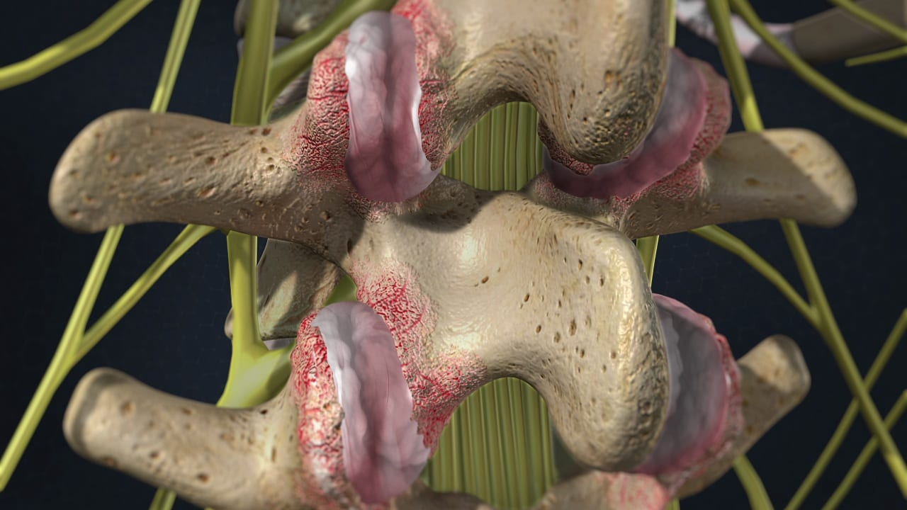 Facet Joint Syndrome Pain